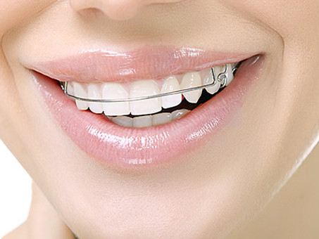 What to do if your retainer feels tight