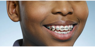 Ideal age for braces
