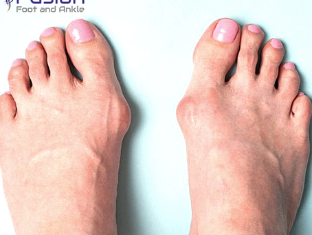 When is it time for bunion surgery?