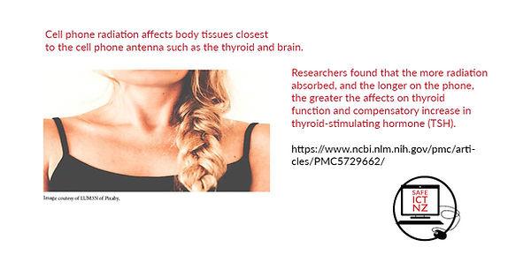 SafeICT NZ thyroid.jpg