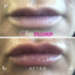 _lip PLUMP before after 2 (1).png