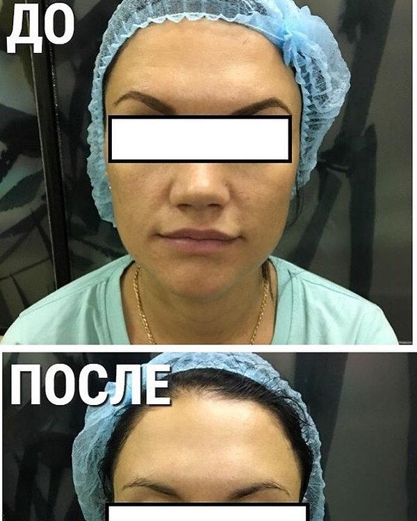 Пропитка лица «ВИВАТОН» . Процедура перв
