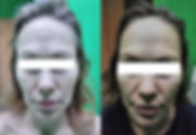 Массаж-пропитка лица «Виватон» , результ