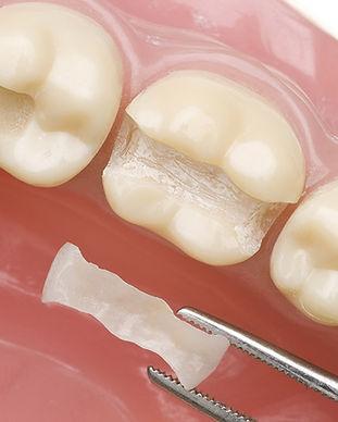 Dental Inlay Cancun