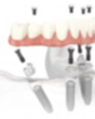All-on-4 Dental Implant treatments Cancun Mexico | Implant dentistry Mexico