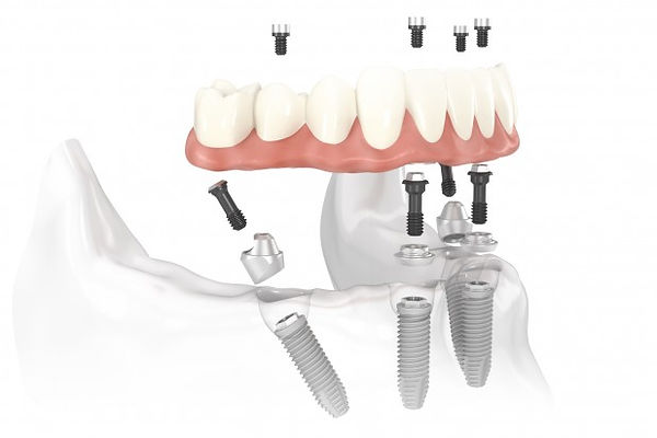All-on-4 Dental implats Mexico , Mexico All-on-4 Implant dentistry
