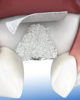 dental-bone-graft-Cancun