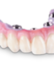 Hybrid-dentures-Cancun-Costs