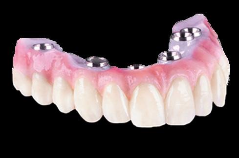 Hybrid dentures Mexico| SmileMake Over Cancun | Dental Destinations Cancun | Best Dental Experience Cancun Mexico