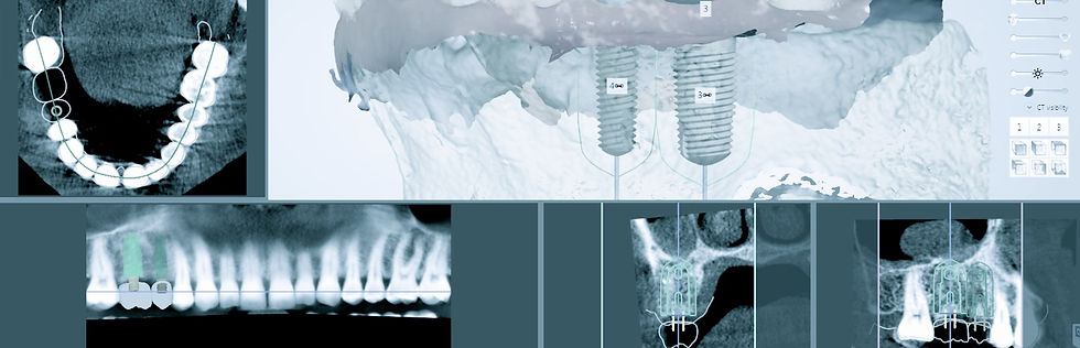 Implant dentistry Mexico, Top dental Implant Clinic Mexico, Planning