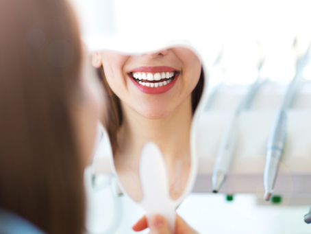 Dental Veneers in Mexico