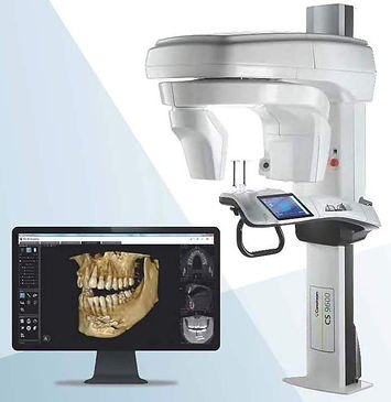 CBCT SCAN - IMPLANTS