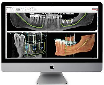 ALLON4 ALLON6 Cancun - Implant Planning