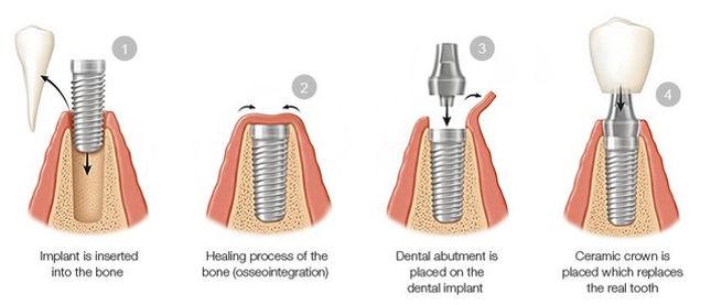 Dental-Implant-Procedure-Steps.jpeg