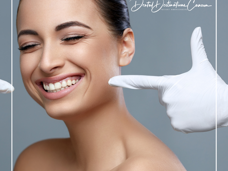 Dental Crowns in a Day – Cancun