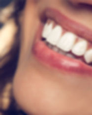 ZOOM teeth whitening in Cancun