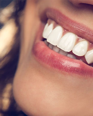 ZOOM teeth whitening in Cancun