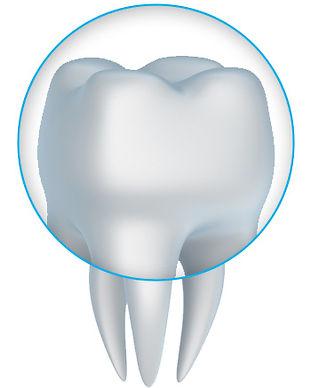 Dental Crown in Cancun