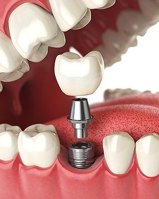 Dental Implant Cancun