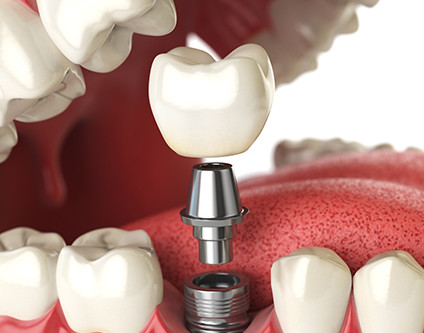 Dental Implant Surgery in Cancun