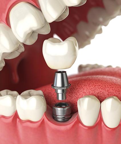 Dental implants | Dental Vacation | Dental Destinations Cancun