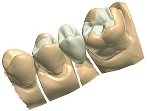 Cosmetic Dentistry Onlays, Inlays in Cancun