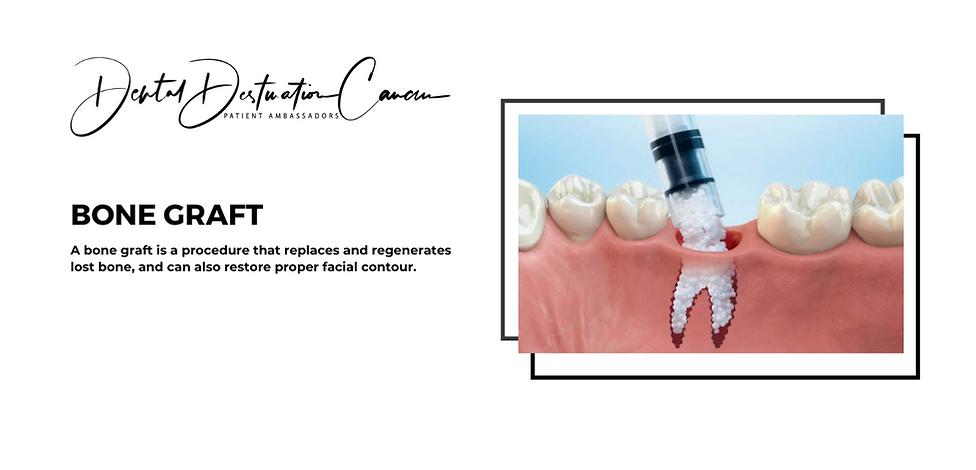 dental implant bridge-3.png