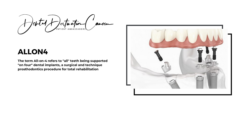 ALLON4 Dental Implants Cancun | Dental Destinations Cancn | Best Dental Experience Cancun Mexico