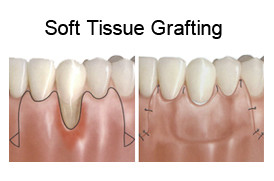 soft-tissue-grafting in Cancun