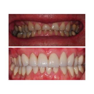 Cosmetic dentistry in Cancun | Dental De