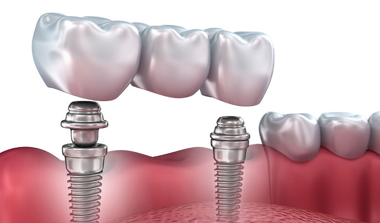 implant-with-crowns-and-bridges-1.jpg
