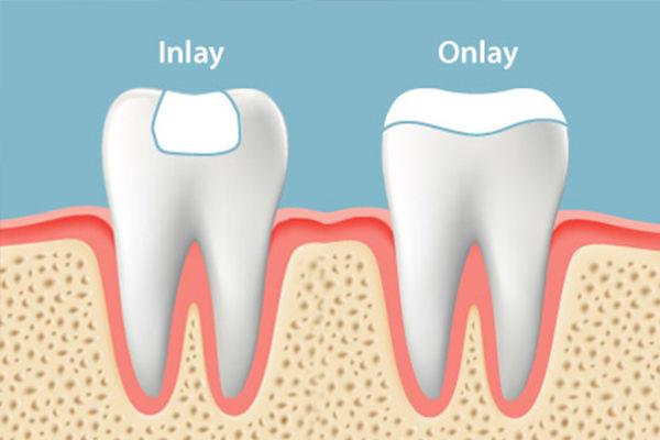 dental-inlay.jpg