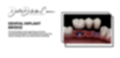 dental implant bridge-2.png