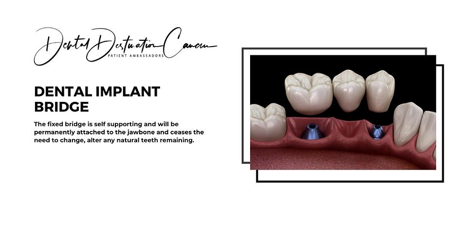 dental implant bridge-2.png