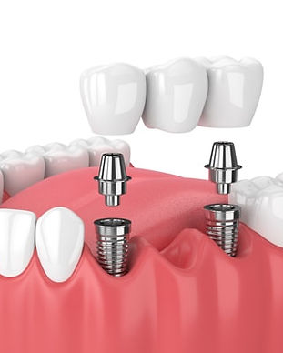 Dental Implants Cancun Mexico