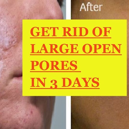 Get Rid of OPEN PORES in 3 Days | Open Pores Treatment at home