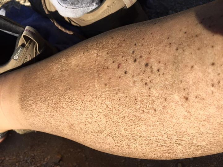 Dirty Leg