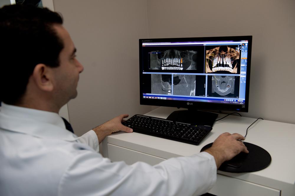 Planejamento Cirúrgico Virtual