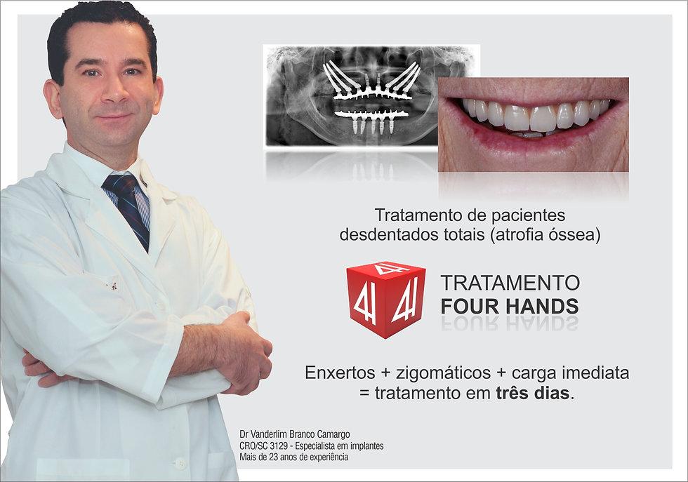 Dr Vanderlim Branco Camargo - Implantes Zigomáticos