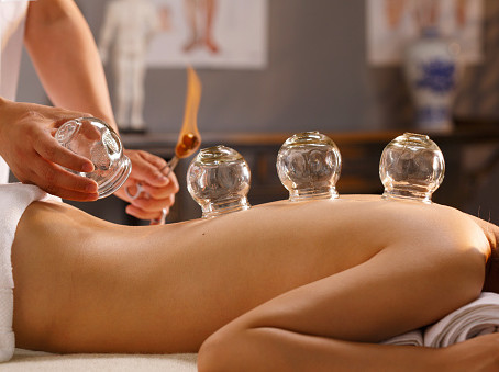 Did someone just say Cupping Therapy?
