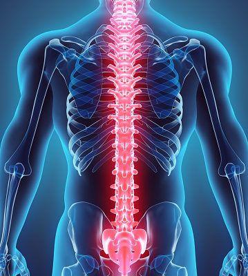 spinal-stroke-359x400.jpg