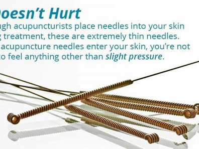The Best Things You Should Know About Acupuncture