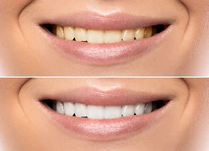Denta Associates Papamoa Teeth Whitening
