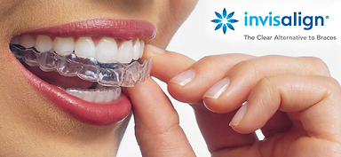 Dental Associates Papamoa Invisalign