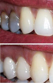Dental Associates Papamoa Crowns