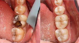 Dental Associates Papamoa Restoration