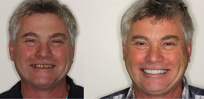 Dental Associates Papamoa Smile Makeover