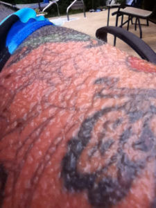 Tattoo damages by sun