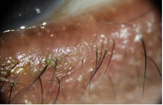 sydney-blepharitis-dry-eye-optometrist