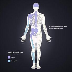multiple-myeloma-femur.jpg